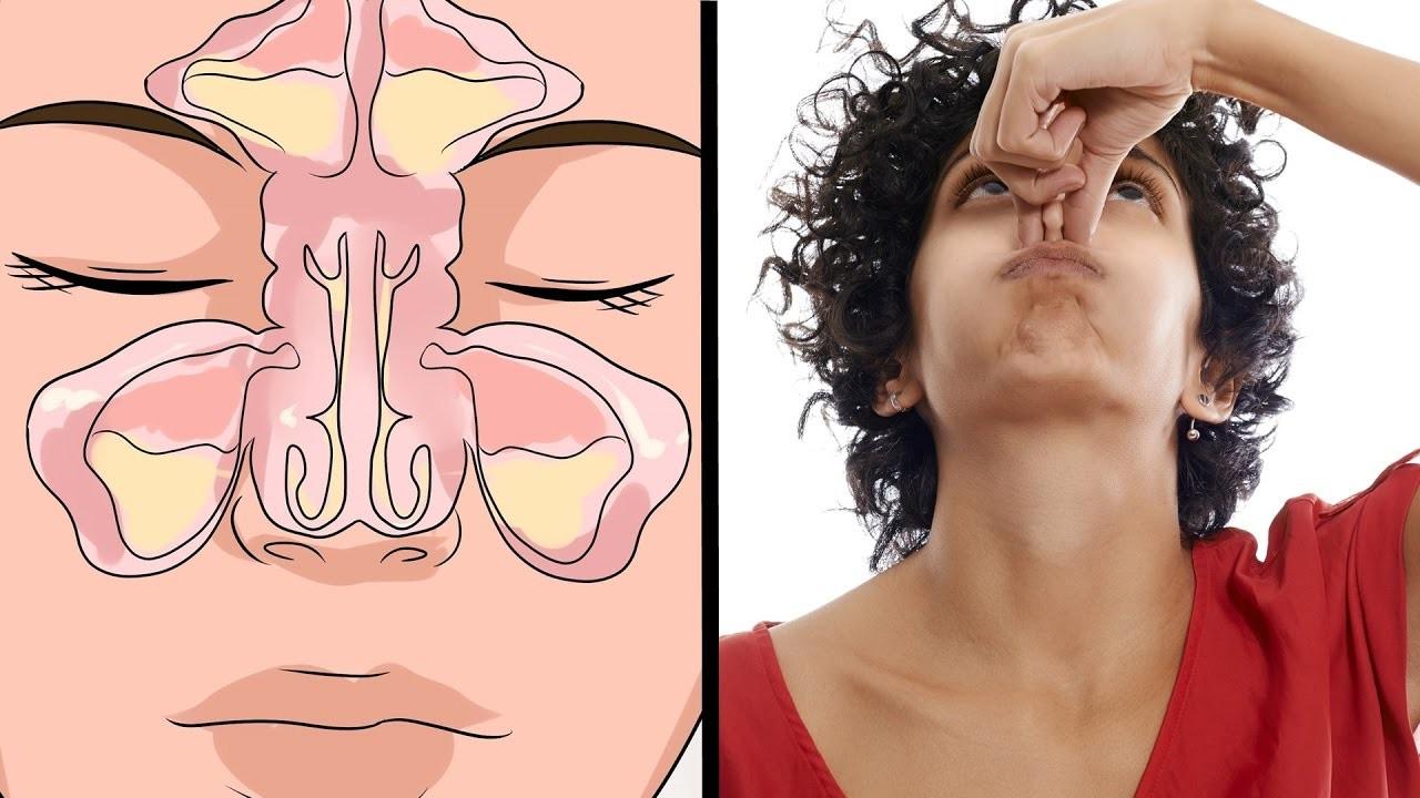 Dicas Caseiras Para Tratar a Sinusite