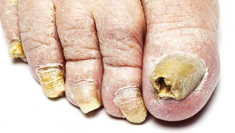 Remédios Caseiros Para Eliminar Micose nas Unhas