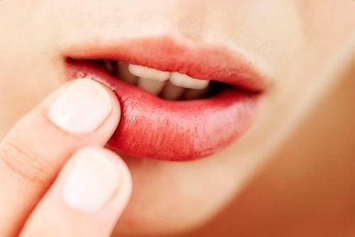 Remédios Caseiros Para Tratar Herpes