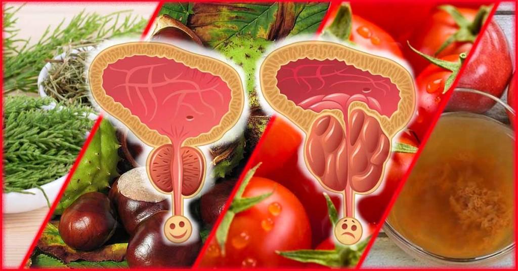 Aliviar Inflamação da Próstata