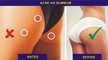 eliminar acne no bumbum