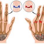 osteoartrite nas maos