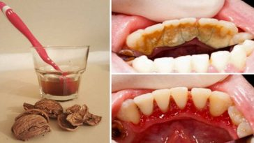 remover a placa bacteriana