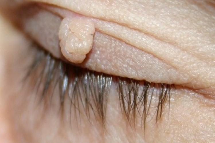 Remedios Caseiros Para Verrugas