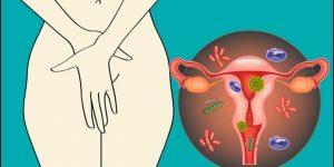 Como Tratar Infecção Vaginal Por Fungo com Remédios Caseiros!
