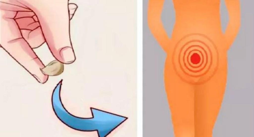 Remédio Caseiro Para Eliminar Infecções Vaginais