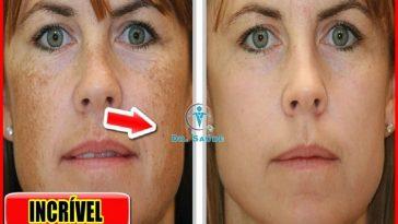 eliminar as manchas no rosto