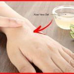 tratar coceira da pele