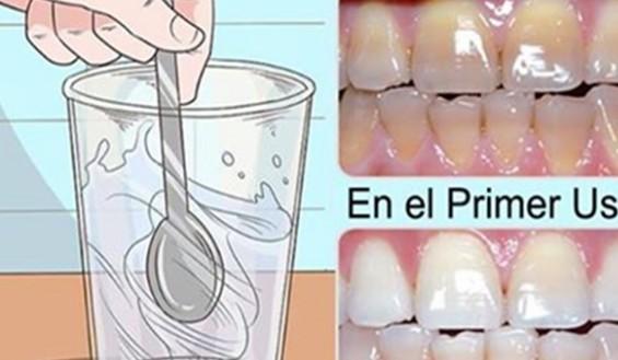 Basta Usar uma Gota Desse Remédio e os Seus Dentes Ficarão Brancos