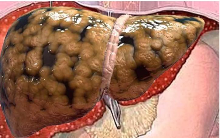 eliminar toda a gordura do fígado