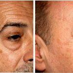 remover as manchas do rosto