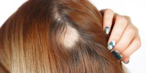 dicas para fazer o cabelo parar de cair