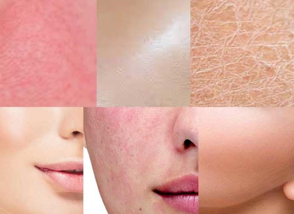 quais os tipos de pele