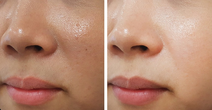 acido salicílico clareia a pele